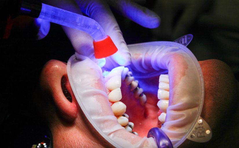Zła sposób żywienia się to większe deficyty w jamie ustnej a również ich brak